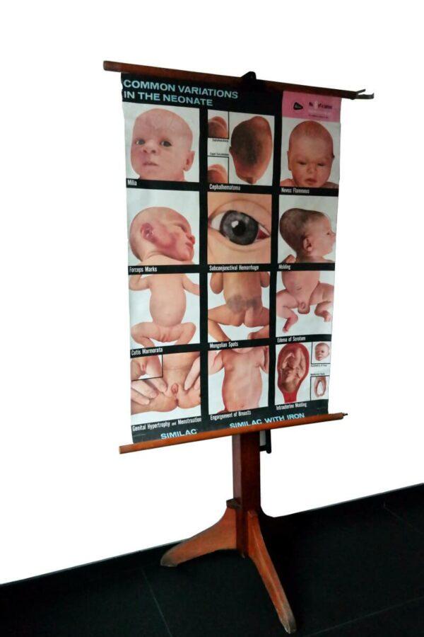 Schoolkaart Babyziekten – Foto 2